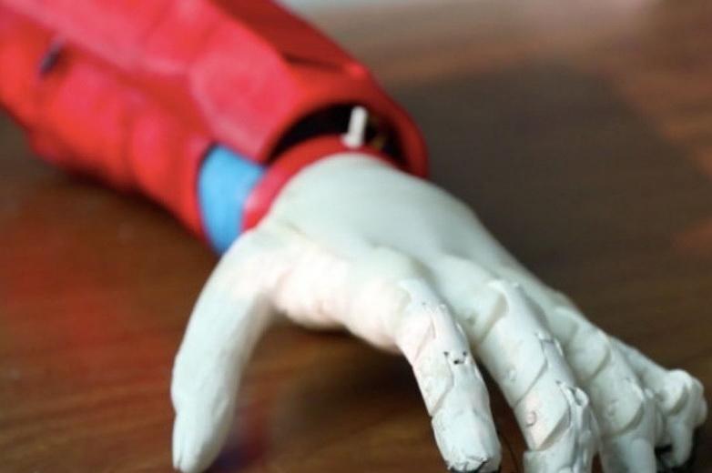 U Tunisu pomoću 3D printera izrađena bionička ruka na solarnu energiju
